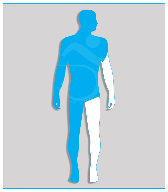1DX (nessuna funzione dell'arto) Perdita anatomica o agenesia di un arto superiore oppure limitazione funzionale che non consenta l'utilizzo di alcun comando.4DX (nessuna funzionalità di uno degli arti inferiori)Limitazione funzionale per esiti stabilizzati di lesioni di qualsiasi natura che non consenta il regolare uso dei pedali dell'acceleratore e del freno (per minorazione a destra) oppure l'uso regolare e continuo del pedale della frizione (per minorazione a sinistra) - Attenzione: se l'esame per il conseguimento della patente di guida è sostenuto con veicolo munito di cambio automatico, la patente sarà valida soltanto per tali veicoli.
