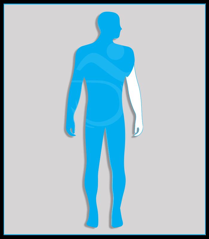 Perdita anatomica o agenesia di un arto superiore oppure limitazione funzionale che non consenta l'utilizzo di alcun comando.