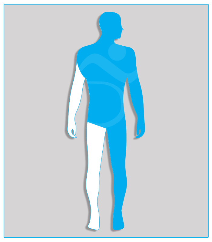 1SX (nessuna funzione dell'arto) Perdita anatomica o agenesia di un arto superiore oppure limitazione funzionale che non consenta l'utilizzo di alcun comando.4SX (nessuna funzionalità di uno degli arti inferiori)Limitazione funzionale per esiti stabilizzati di lesioni di qualsiasi natura che non consenta il regolare uso dei pedali dell'acceleratore e del freno (per minorazione a destra) oppure l'uso regolare e continuo del pedale della frizione (per minorazione a sinistra) - Attenzione: se l'esame per il conseguimento della patente di guida è sostenuto con veicolo munito di cambio automatico, la patente sarà valida soltanto per tali veicoli.