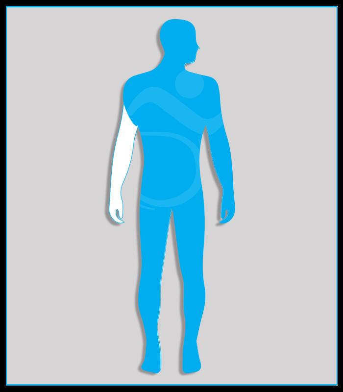 1SX (nessuna funzione dell'arto) Perdita anatomica o agenesia di un arto superiore oppure limitazione funzionale che non consenta l'utilizzo di alcun comando.