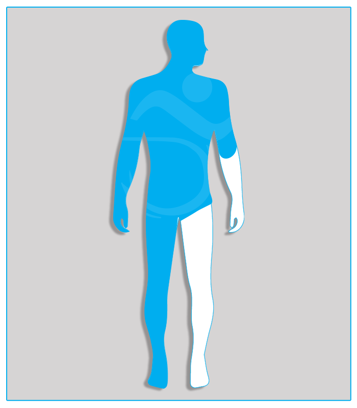 2DX (no protesi) Perdita anatomica parziale di un arto superiore con conservazione di almeno due terzi dell'avambraccio.4DX (nessuna funzionalità di uno degli arti inferiori)Limitazione funzionale per esiti stabilizzati di lesioni di qualsiasi natura che non consenta il regolare uso dei pedali dell'acceleratore e del freno (per minorazione a destra) oppure l'uso regolare e continuo del pedale della frizione (per minorazione a sinistra) - Attenzione: se l'esame per il conseguimento della patente di guida è sostenuto con veicolo munito di cambio automatico, la patente sarà valida soltanto per tali veicoli.