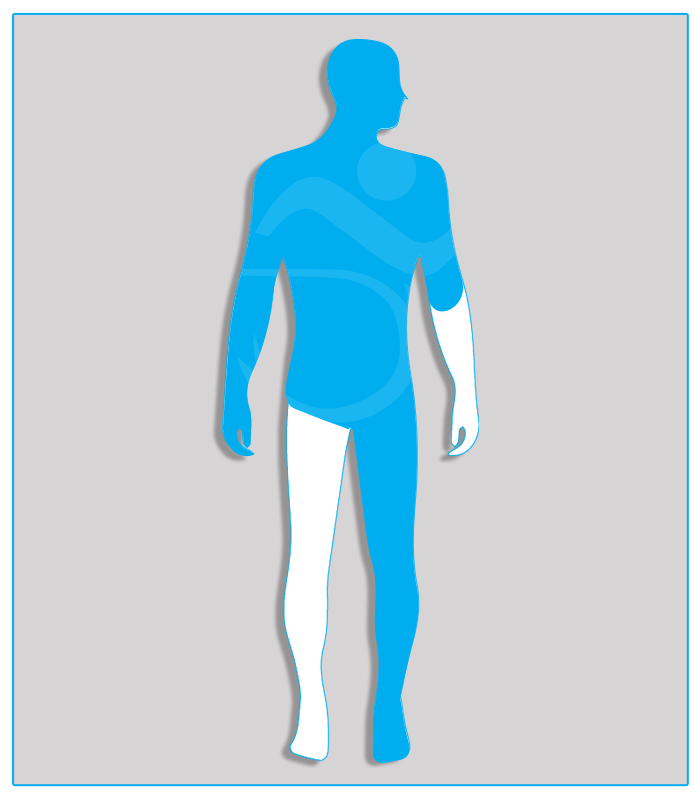 2DX (no protesi) Perdita anatomica parziale di un arto superiore con conservazione di almeno due terzi dell'avambraccio.4SX (nessuna funzionalità di uno degli arti inferiori)Limitazione funzionale per esiti stabilizzati di lesioni di qualsiasi natura che non consenta il regolare uso dei pedali dell'acceleratore e del freno (per minorazione a destra) oppure l'uso regolare e continuo del pedale della frizione (per minorazione a sinistra) - Attenzione: se l'esame per il conseguimento della patente di guida è sostenuto con veicolo munito di cambio automatico, la patente sarà valida soltanto per tali veicoli.