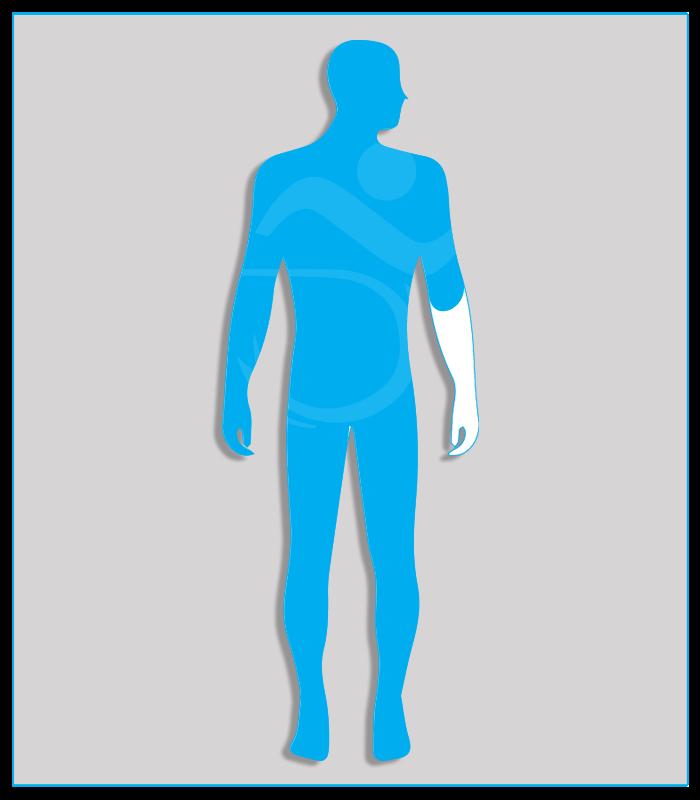 2DX (no protesi) Perdita anatomica parziale di un arto superiore con conservazione di almeno due terzi dell'avambraccio.