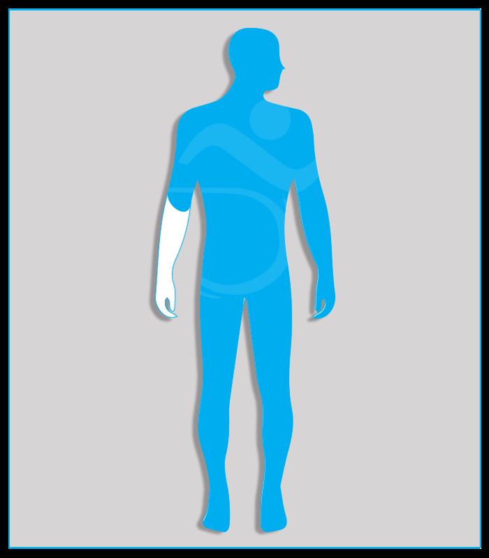 2SX (no protesi) Perdita anatomica parziale di un arto superiore con conservazione di almeno due terzi dell'avambraccio.