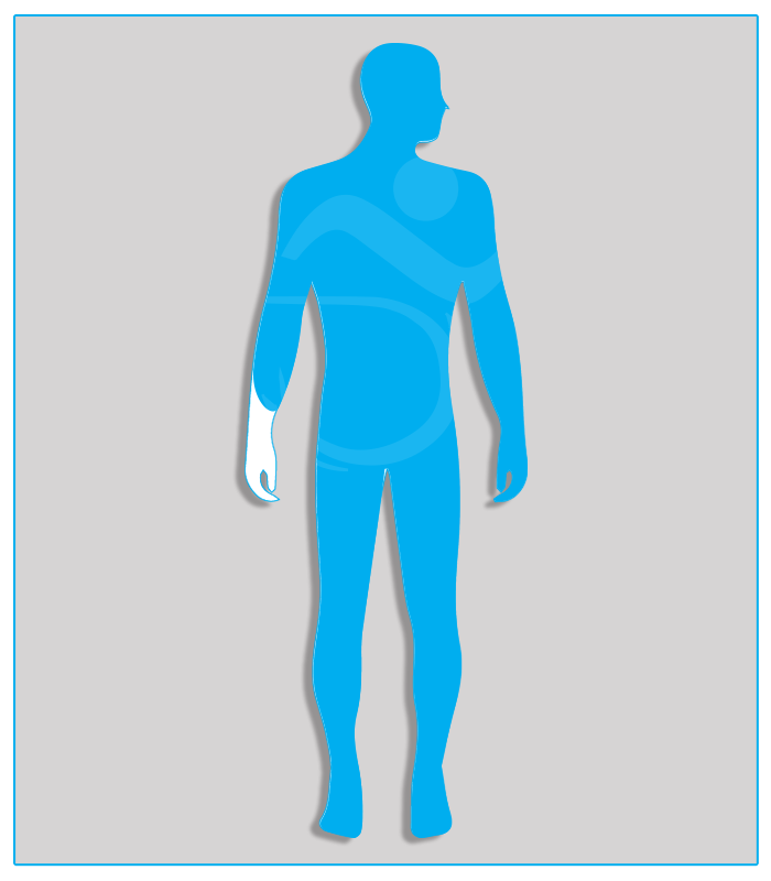 3SX (no protesi) Se l'agenesia o la perdita della mano o la limitazione funzionale sono soltanto parziali e tali quindi da consentire le funzioni delle categorie 1B o 1C, prescrivere gli adattamenti di queste ultime categorie.