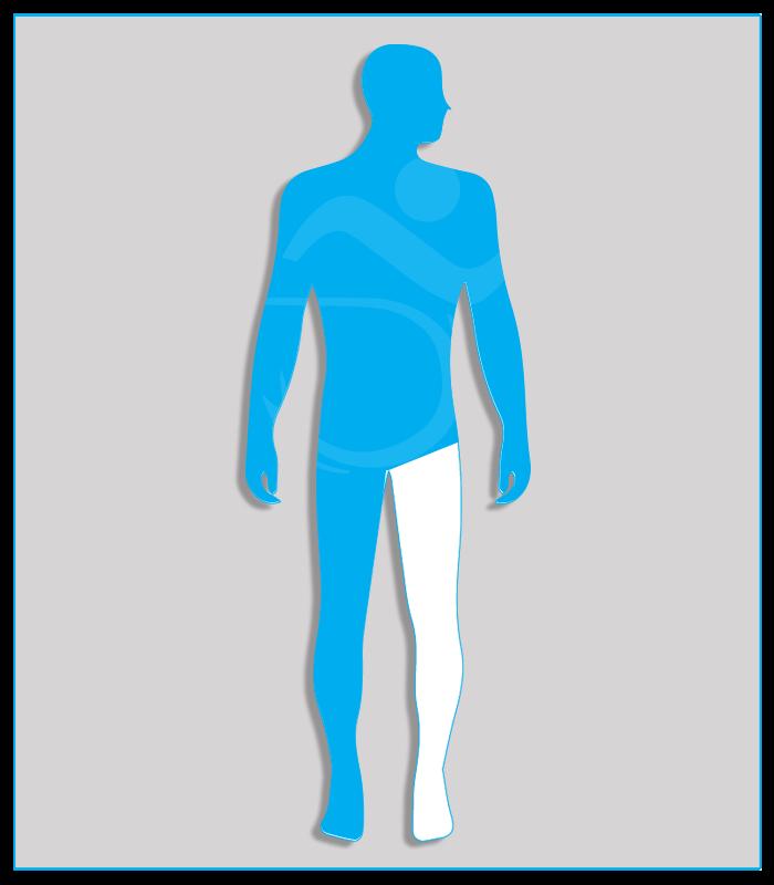 4DX (nessuna funzionalità di uno degli arti inferiori)Limitazione funzionale per esiti stabilizzati di lesioni di qualsiasi natura che non consenta il regolare uso dei pedali dell'acceleratore e del freno (per minorazione a destra) oppure l'uso regolare e continuo del pedale della frizione (per minorazione a sinistra) - Attenzione: se l'esame per il conseguimento della patente di guida è sostenuto con veicolo munito di cambio automatico, la patente sarà valida soltanto per tali veicoli.