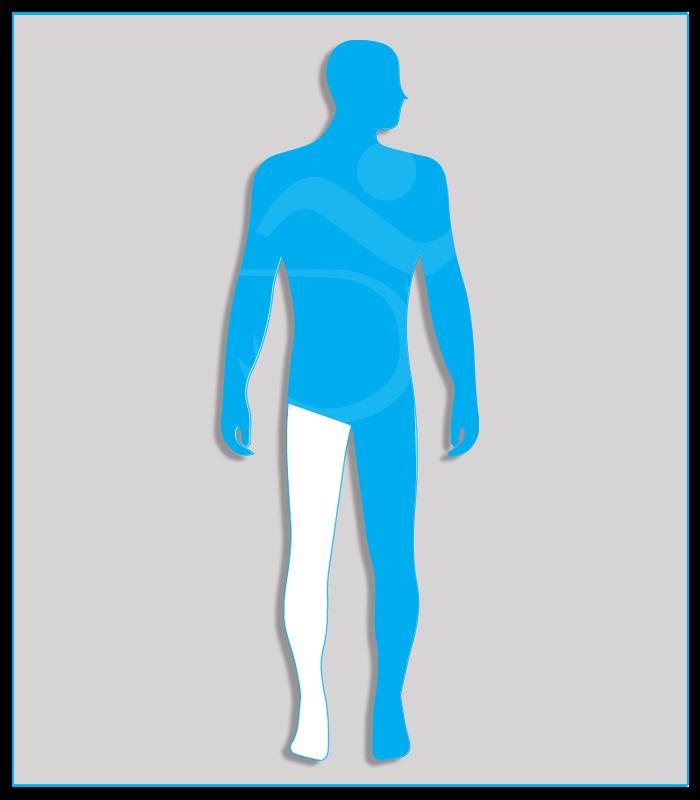 4SX (nessuna funzionalità di uno degli arti inferiori)Limitazione funzionale per esiti stabilizzati di lesioni di qualsiasi natura che non consenta il regolare uso dei pedali dell'acceleratore e del freno (per minorazione a destra) oppure l'uso regolare e continuo del pedale della frizione (per minorazione a sinistra) - Attenzione: se l'esame per il conseguimento della patente di guida è sostenuto con veicolo munito di cambio automatico, la patente sarà valida soltanto per tali veicoli.