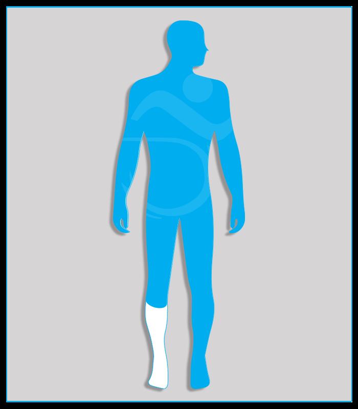5SX (limitata funzionalità di un arto inferiore)Limitazione funzionale di un arto inferiore, che consenta l'azionamento regolare e continuo del pedale della frizione (per l'arto sinistro) o dell'acceleratore (per l'arto destro).